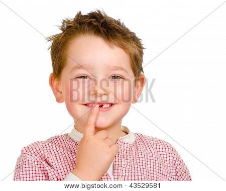 Child showing off his lost teeth isolated on white