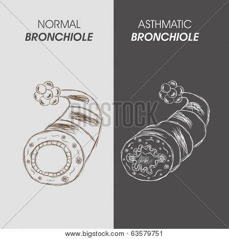 World Asthma Day concept with illustration of asthmatic bronchitis.