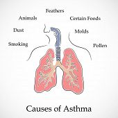 image of asthma inhaler  - Illustration of human lungs and causes of Asthma on grey background - JPG