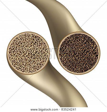 Bone Health Symbol