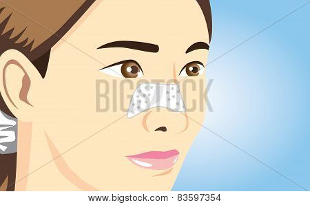 Closeup shot of acne pads on nose