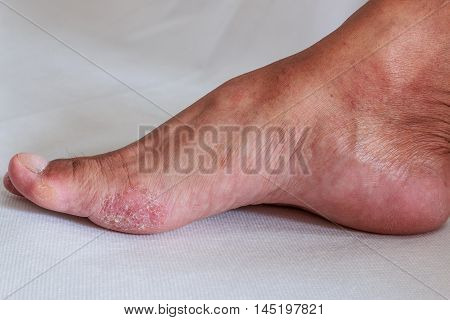 Foot is a fungal infection on white background