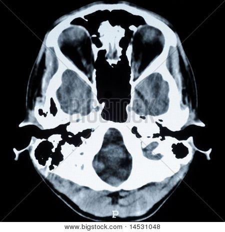 CT-Foto des menschlichen Gehirns