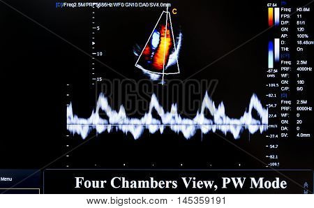 Colourful Ultrasound Monitor Image. Four Chambers View