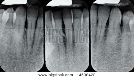 Lower Periodontal X-rays