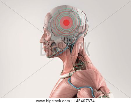Anatomy model showing a headache. Red spot in area of pain. 3D illustration