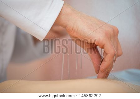 Photo of acupuncture treatments placement of medical needles on the patient close-up