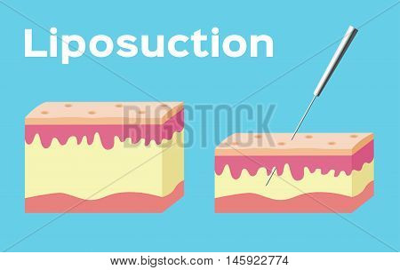 Liposuction before and after , fat on blue background