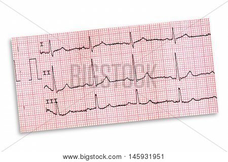 strip of a electrocardiogram on white background