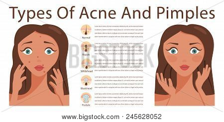 Types Of Acne Pimples Human Skin Poster  Sebum In Clogged Pore, Growth  Bacteria, Redness, Inflammati poster