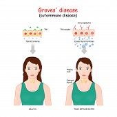 Graves Disease. Toxic Diffuse Goiter Is An Autoimmune Disease That Affects The Thyroid poster