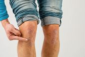 Application Of Therapeutic Ointment For Allergic Rashes On The Leg. Treatment Of Psoriasis, Cosmetic poster