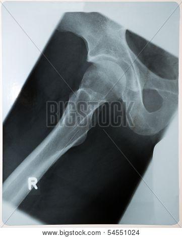 X-ray Photo Of Human Hip