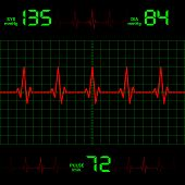 pic of ecg chart  - illustration displays the line of heart on Blood Pressure - JPG