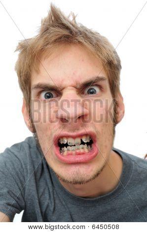 Man Showing His Braces