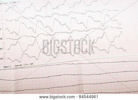 Ecg Tape With Paroxysmal Ventricular Tachycardia And Ventricular Asystole