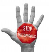 foto of osteoporosis  - Stop Osteoporosis Sign in Red Polygon on Pale Bare Hand - JPG