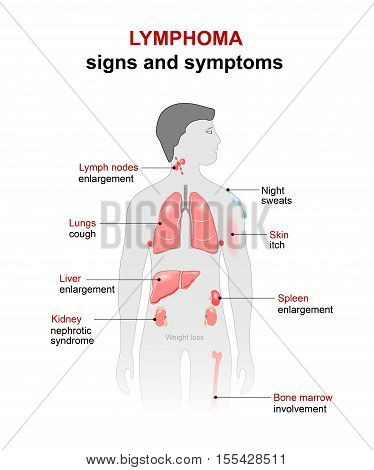 lymphoma - cancer disease. Signs and symptoms. man silhouette with highlighted internal organs.