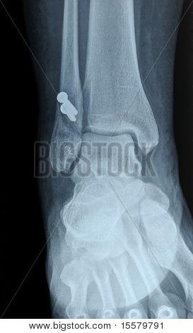 Radiograph Of Human Fracture Fibula Bone
