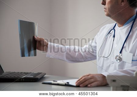 Doctor Is Reviewing A X-ray.