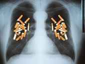 foto of tobacco smoke  - Effects of cigarette smoking  - JPG