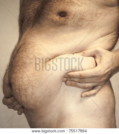 Obesity - fat belly
