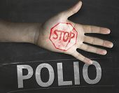 stock photo of polio  - Educational and Creative composition with the message Stop Polio on the blackboard - JPG