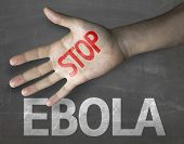 image of hemorrhage  - Educational and Creative composition with the message Stop Ebola on the blackboard - JPG