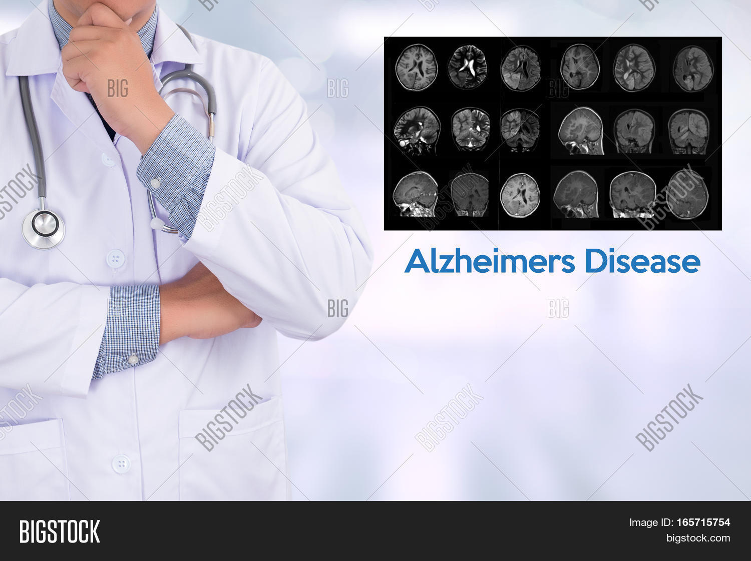 """alzheimers degenerative brain process Alzheimer's is a form of dementia that involves progressive memory loss and the   the nerve degeneration occurs in a part of the mid brain called the  have  already had the disease process """"brewing"""" for about 20-30 years."""