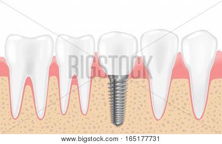 Healthy teeth and dental implant. Realistic vector illustration of tooth medical dentistry. Human teeth dental implantation