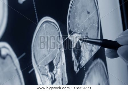 pen showing X-ray picture of the skull on screen