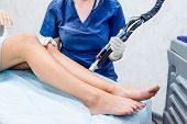 Close Up Laser Hair Removal In The Beauty Salon. Woman Having Legs Epilation. Laser Hair Removal Equ poster