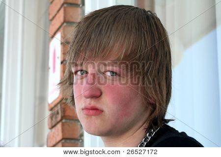 Sad Sunburned Teen