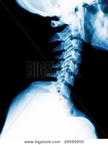 X-Ray image of a human cervical spine