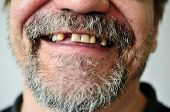 foto of toothless smile  - part of a man - JPG