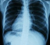 stock photo of roentgen  - Chest xray scan - JPG