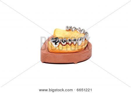 Dental Plaster Moulds, Dentures