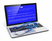 pic of blue-screen-of-death  - Business laptop or office notebook computer PC with error message on blue screen and stethoscope on keyboard isolated on white background - JPG