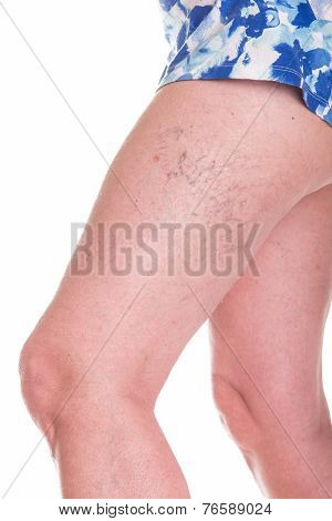 Human Spaider Veins On The Legs Of Woman