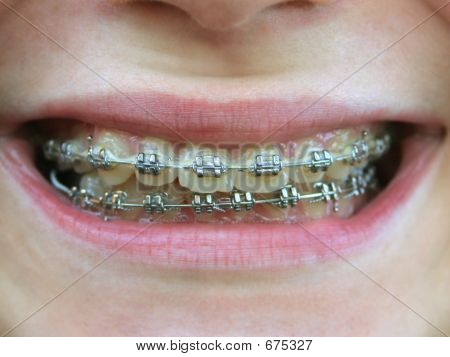 Brackets On Teeth