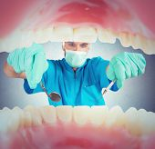 image of plaque  - Dentist takes care of the dental plaque  - JPG