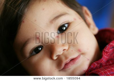 Eight Month Old Baby With Chicken Pox