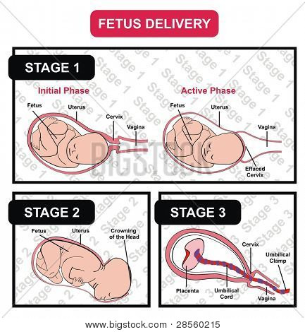 VECTOR - Fetus Delivery - Showing the Three Stages with Parts - Also the Two Phases of First Stage Initial and Active - Useful For Education and Medical Purposes such as Clinics and Hospitals