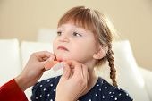 Nurse Applying Medical Patch To Little Girls Injured Face Indoors. First Aid poster