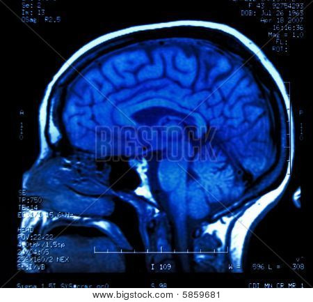 des Gehirns mri