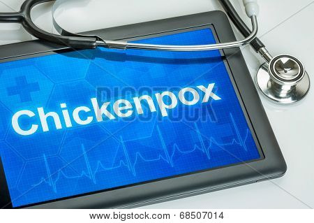Tablet with the diagnosis Chickenpox on the display