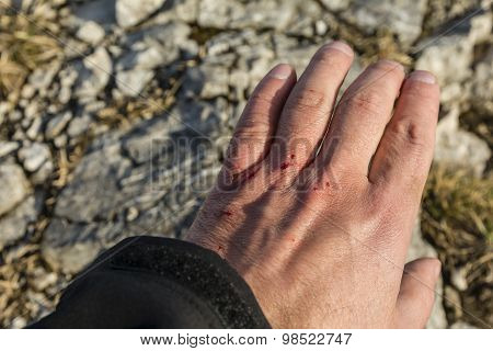 Wounded His Hand On The Stones