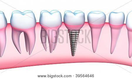 Dental Implant detailed view. 3D Illustration
