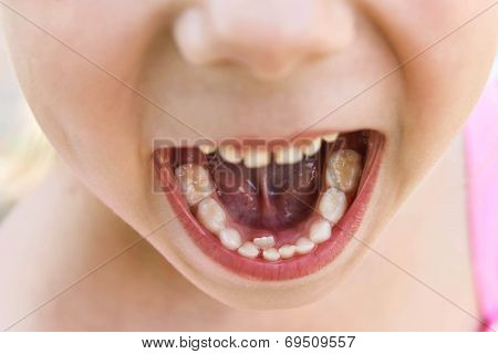 Baby tooth is still not dropped, the next grew root tooth