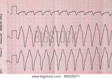 Tape Ecg With Paroxysm Correct Form Of Atrial Flutter
